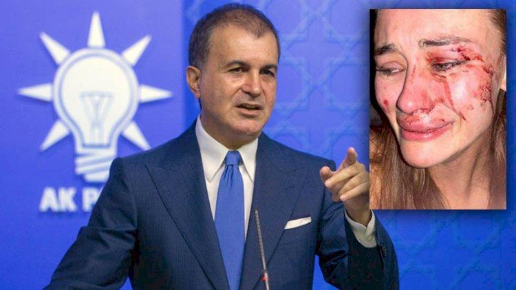 AKP'den 'Ukraynalı modele darp' açıklaması