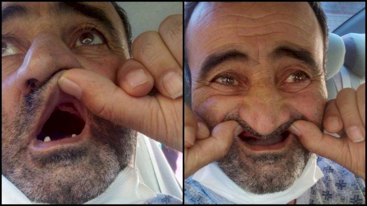 Hastanede dişleri kayboldu... 'Hastalıktan değil açlıktan ölecek'