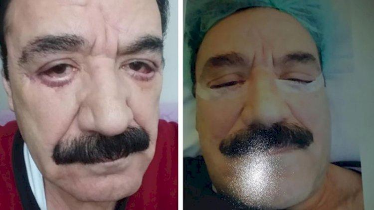 Göz tedavisi için gittiği doktor estetik ameliyat yaptı: Tanınmaz hale geldi