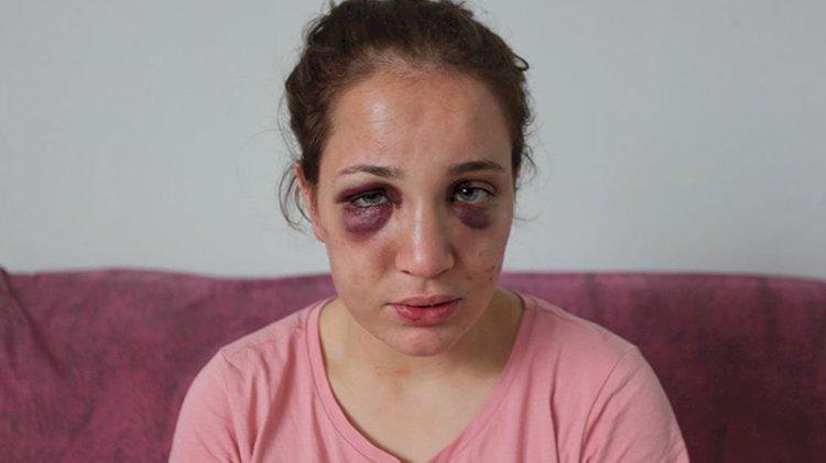 Eşini darp edip serbest kalan koca: Ne oldu beni tutuklatabildiniz mi?