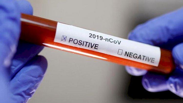 Koronavirüs meğer 2019 Eylül'den beri varmış