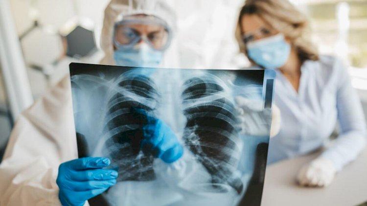 Yeni tarama tekniği, KOVID-19'un akciğerlerde oluşturduğu hasarı gösterdi