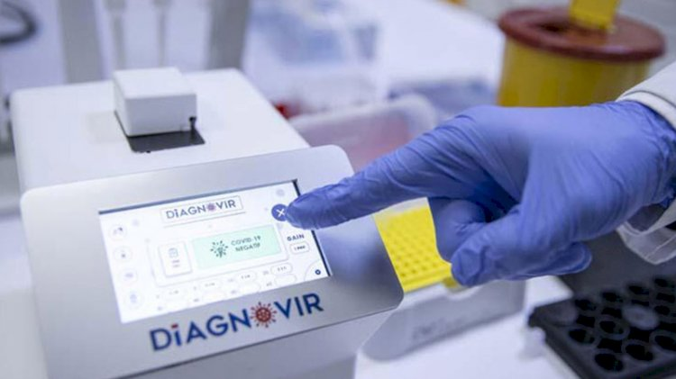Türk bilim insanları geliştirdi! Koronavirüs teşhisi 10 saniyeye düşecek
