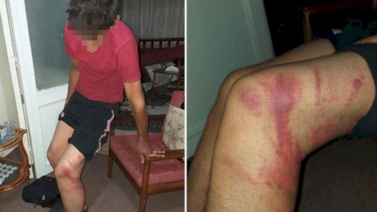 Ustanın çırağını dövdüğü triger kayışı, 'silah' sayıldı: Cezası belli oldu