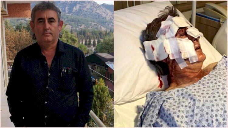 Antalya'da maymun dehşeti: Otel görevlisini yemeye kalktı