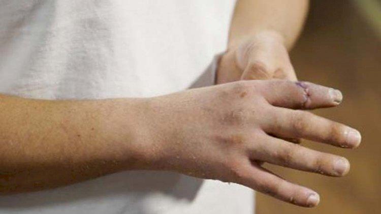Film gibi operasyon: Malta'da kopan parmağını sırt çantasında Türkiye'ye taşıdı