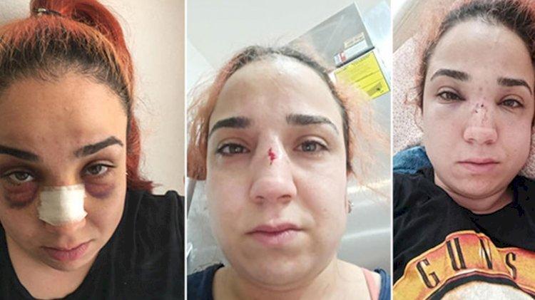 Kadın çalışandan patronuna 'süpürgeyle dövdü' suçlaması