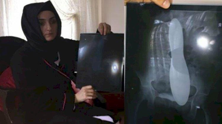 Ameliyatta karnında mala unutulan kadına ödenecek tazminat belli oldu