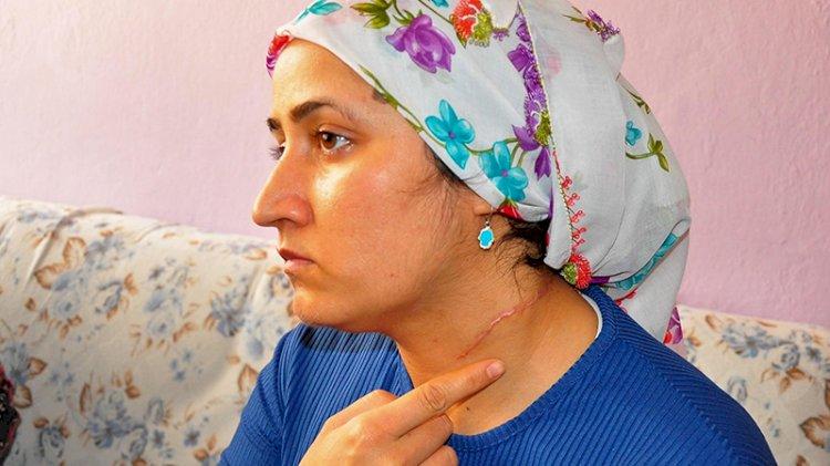 'Eşi yaralama' davasında hakim: Burası Taliban mahkemesi değil